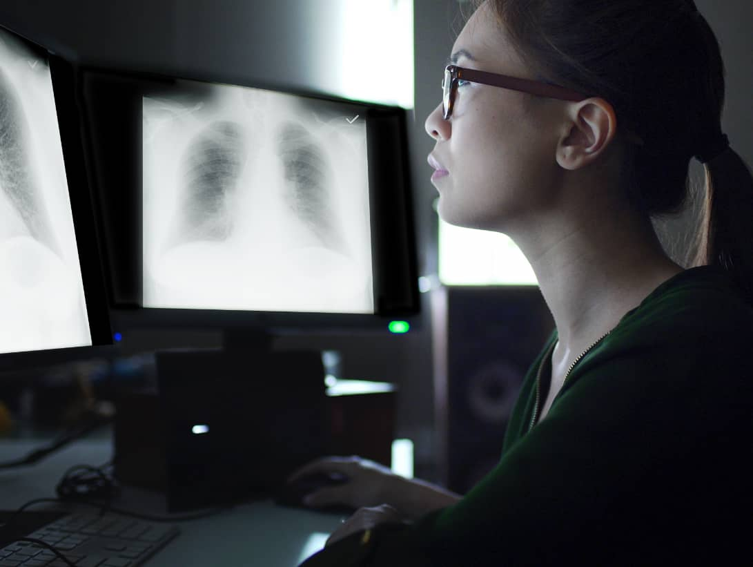 Woman radiologist viewing lung Xrays on video monitor