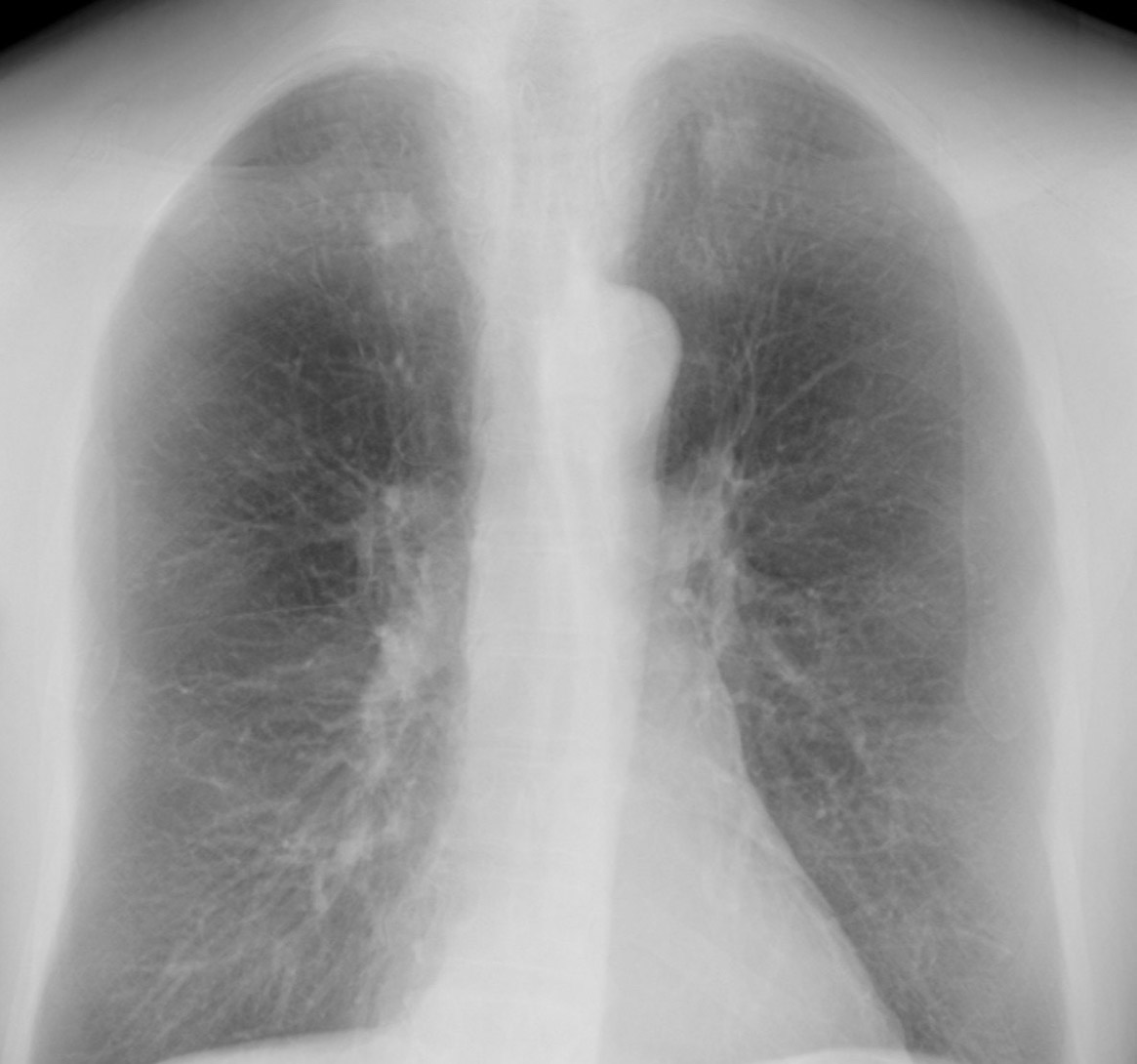 Riverain ClearRead Xray image with rib structure suppressed