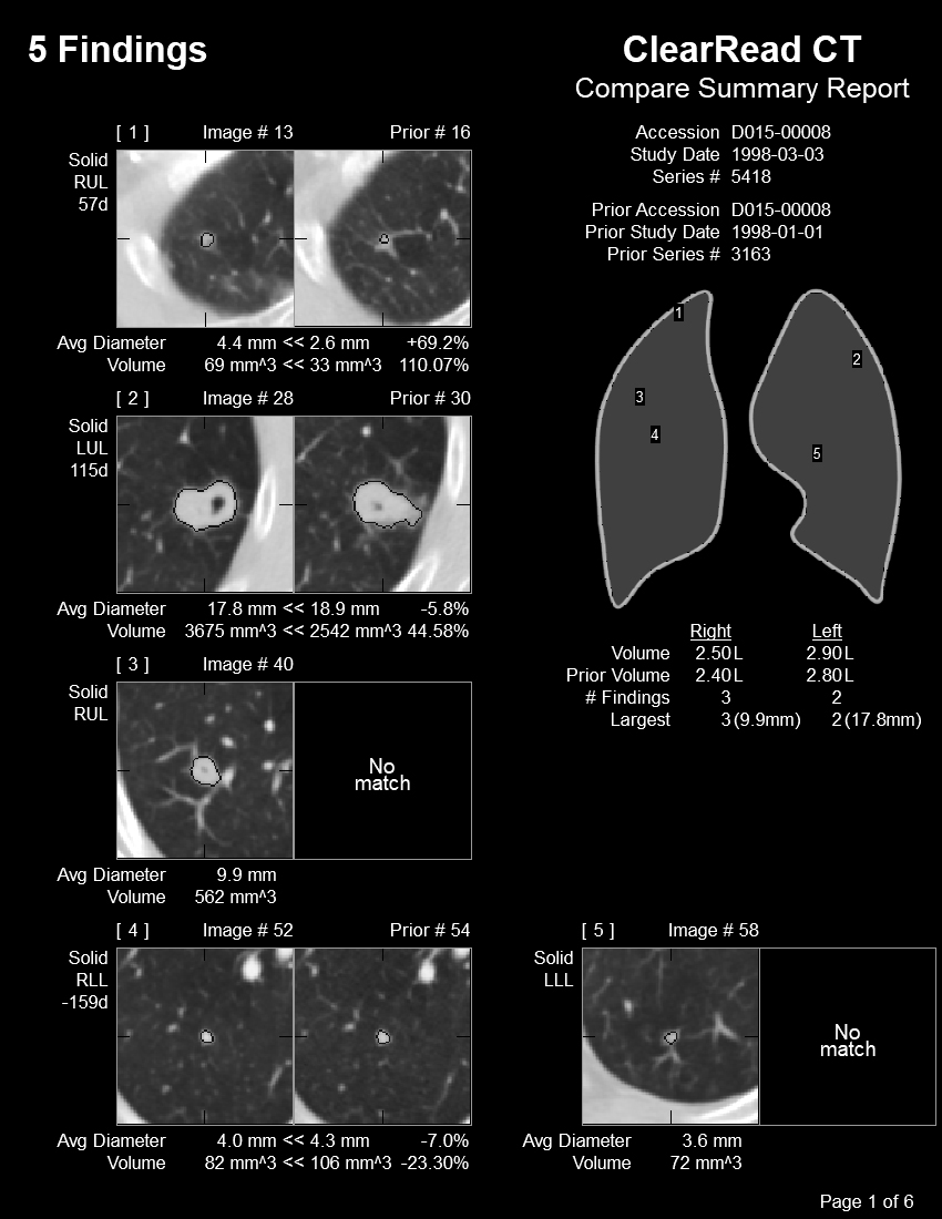 Riverain CT scan - several images