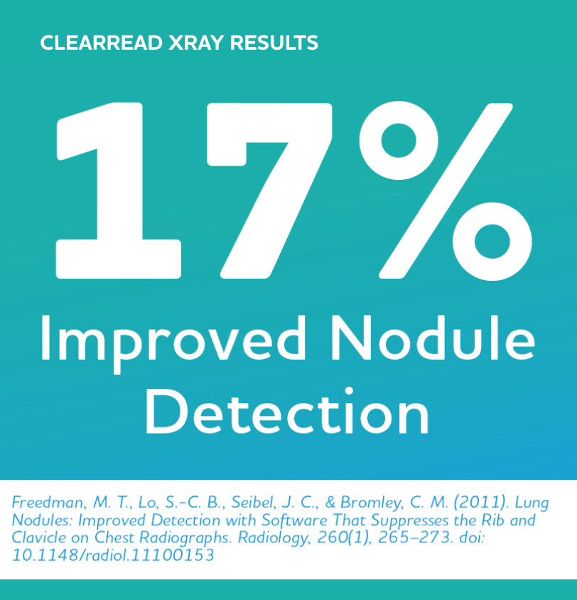 Graphic: 17% improved nodule detection